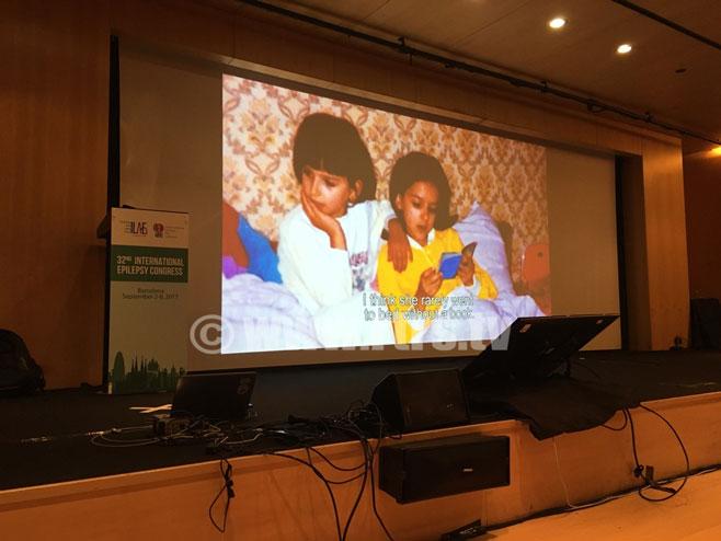 """Филм """"Лица Лафоре"""" приказан на Међународном конгресу неуролога у Барселони (Фото: РТРС)"""