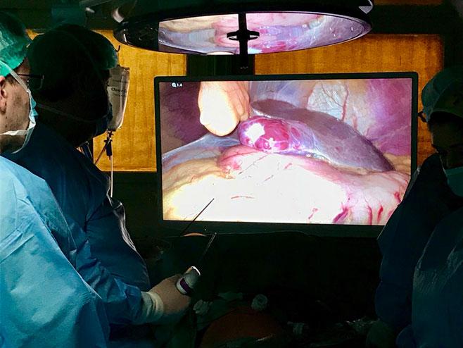 Лапароскопска операција јетре (Фото: РТРС)